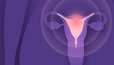 Graficación cuello uterino
