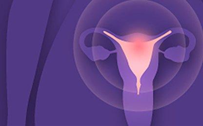 Simposio: situación del cáncer de cuello uterino en Colombia