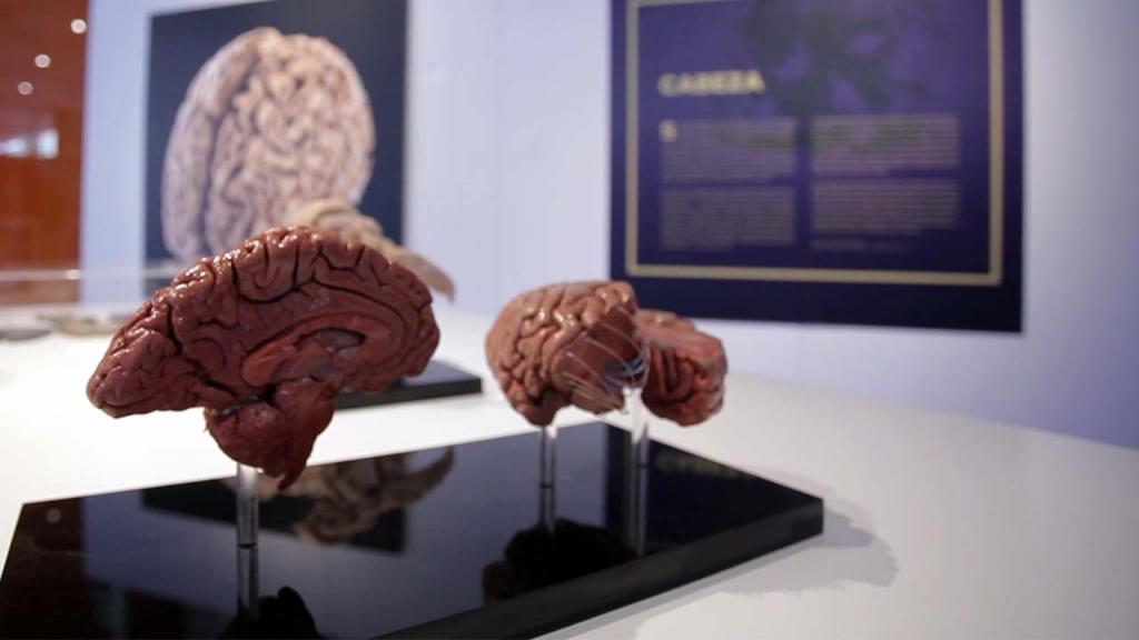 Corte de cerebro