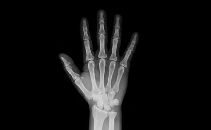 Radiografía de mano