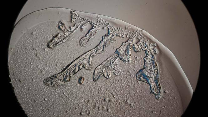 Imagen de micrográfias de cristales de lágrimas